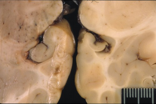 A sea lion's brain affected by domoic acid (right) shows a shrunken hippocampus, in the center of the photo, as compared to a healthy sea lion brain (left). Photo by The Marine Mammal Center